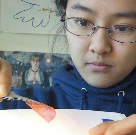 Amy Yuan, BME Yale University 2009